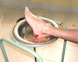 Stingray wound in San Felipe